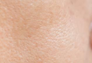 pele com acne