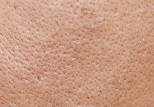 Larocheposay ArticlePage Acne How to get rid of blackheads