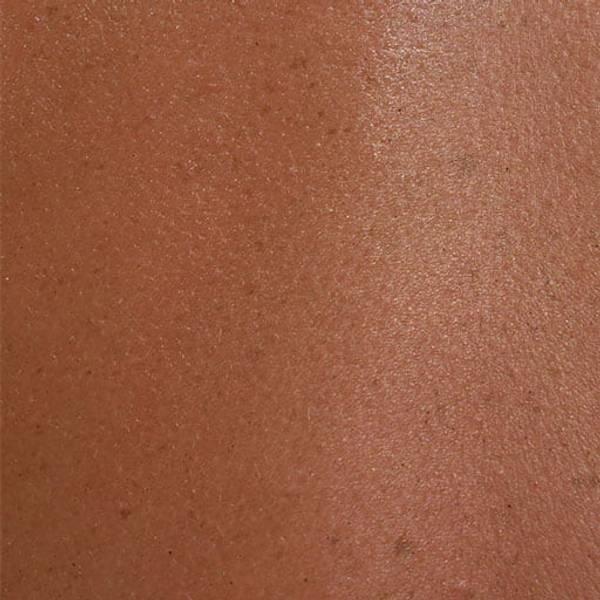 Pele alérgica pele sensível e pele reativa