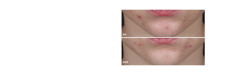 compromisso tratamento de acne