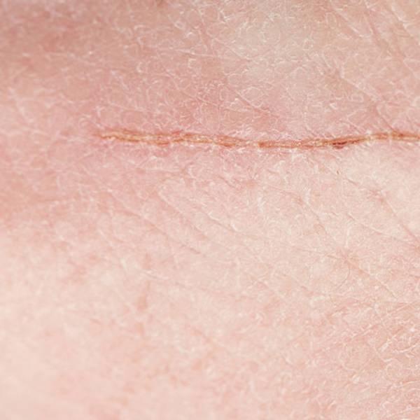 cicatrização de feridas: Como acelerar o processo de cicatrização de feridas